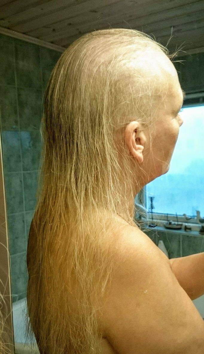 alopecia areata internetmedicin
