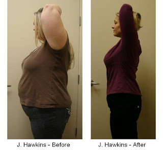 J. Hawkins weight loss Before and after