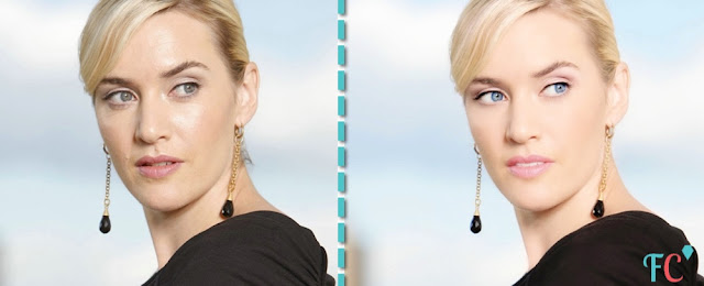 Kate-Winslet surgery