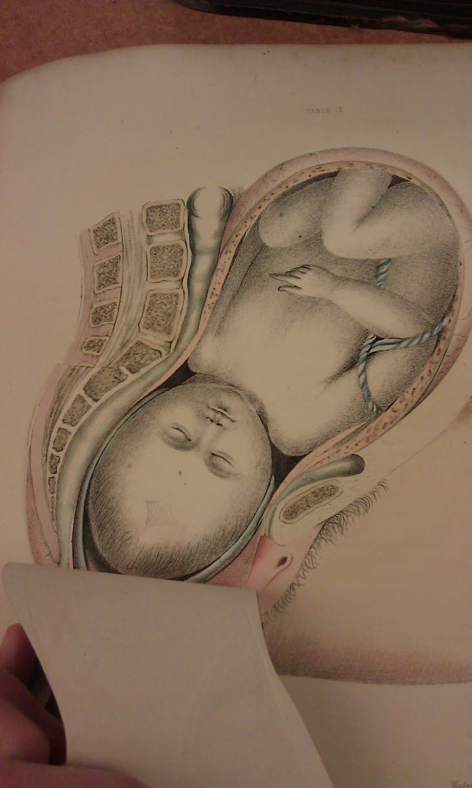 http://ohsu-hca.blogspot.com/2011/04/g-spratts-obstetric-tables-1850.html#uds-search-results