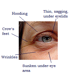 The Eyes Have It - Younger Eyes Nonsurgically