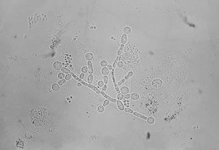 Candidoza genitala: informatii, tratamente cu plante