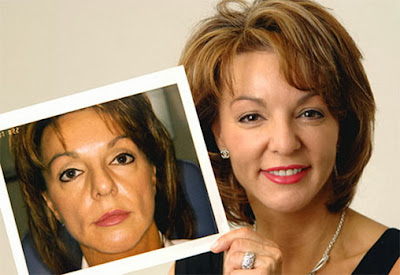 Instant Youth - Non-surgical and Minimally Painful Liquid Face Lifts