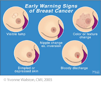 Do breast cancer lumps hurt