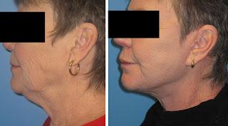Patient after facelift at Concannon Plastic Surgery
