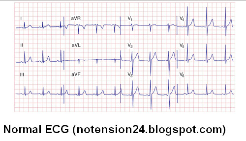 learn how to read 12 lead ecg