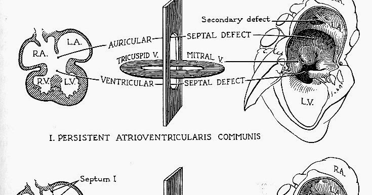 pedi cardiology  asd schematic diagram