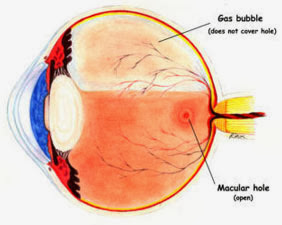 Macular Hole Causes, Symptoms, Diagnosis, Treatment