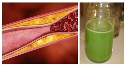 Reducir-el-colesterol-malo-y-desatascar-sus-arterias-con-100-ml-de-este-un-día.