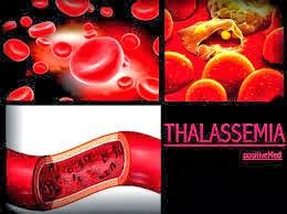 Cara Menyembuhkan Thalassemia