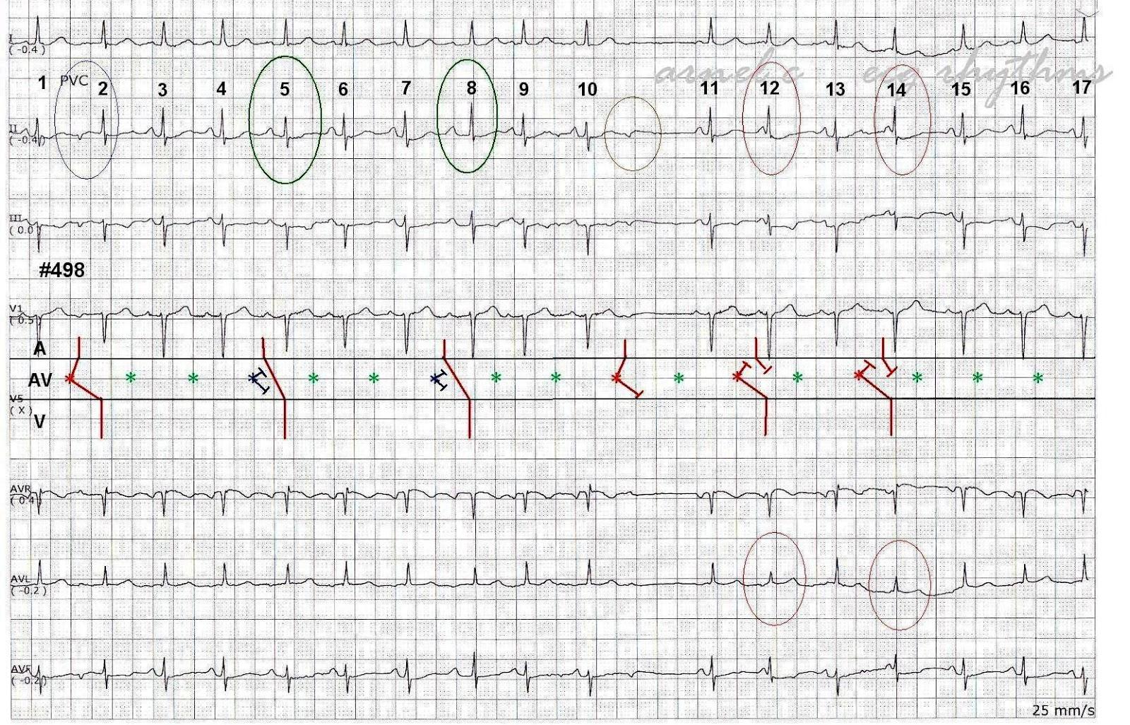 ecg rhythms  several tricks of a pjc in one strip