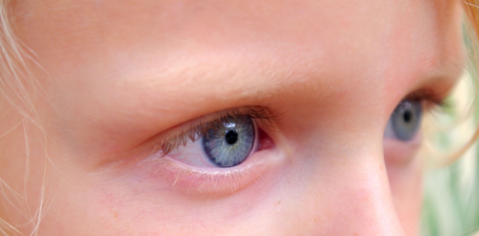 Shades Of Blue Eyes Chart Different shades of blue eyes