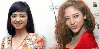 artis indonesia yang operasi plastik