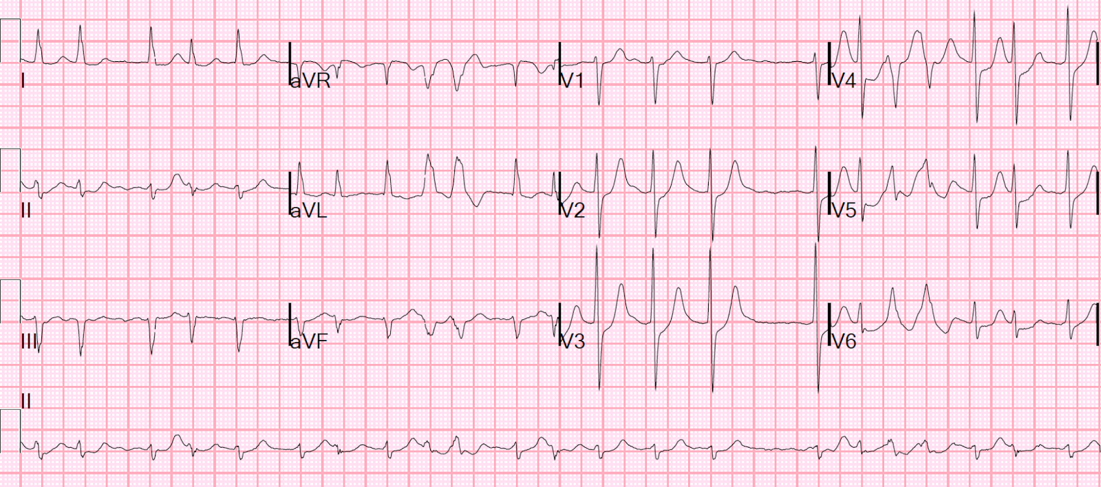 how to find atrial rate on ecg