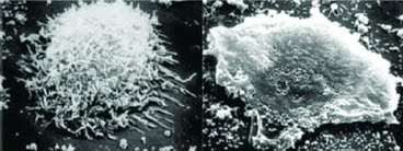 Hình 3: Đại thực bào phế nang bị phá hủy trong bệnh tai xanh