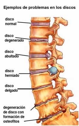 enfermedades disco: