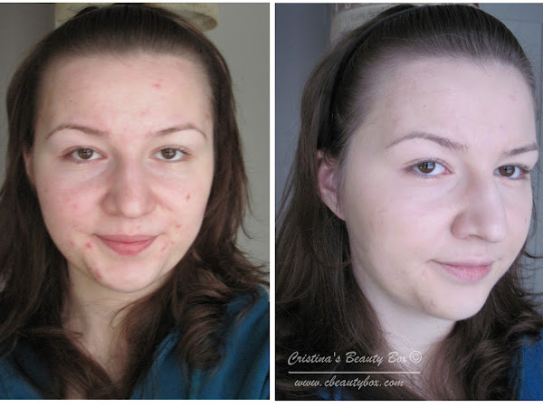 Foundation Routine for Acne Prone Skin {How I Cover Up My Acne - Picture Heavy}