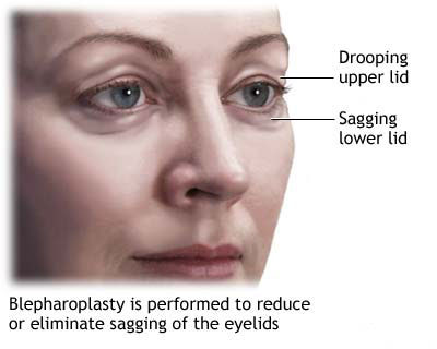 Blepharoplasty corrects sagging or drooping eye lids