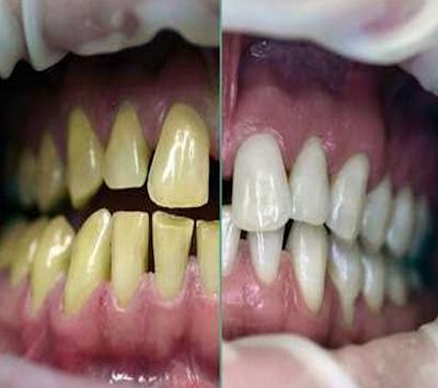 Bahaya Sekiranya Malas Berus Gigi