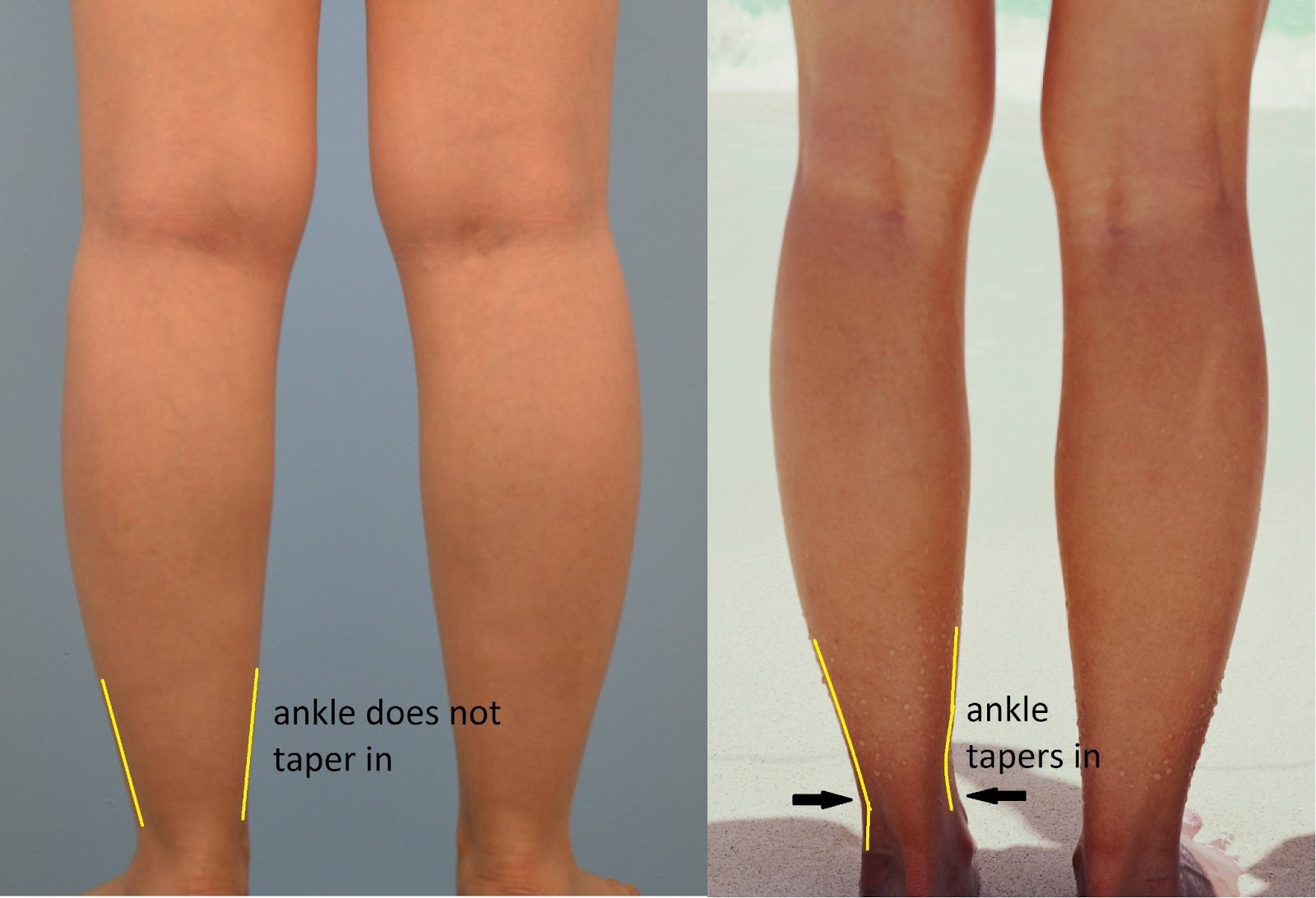 how to get thin toned calves
