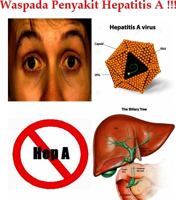 Pengobatan Terbaik Hepatitis A Tradisional