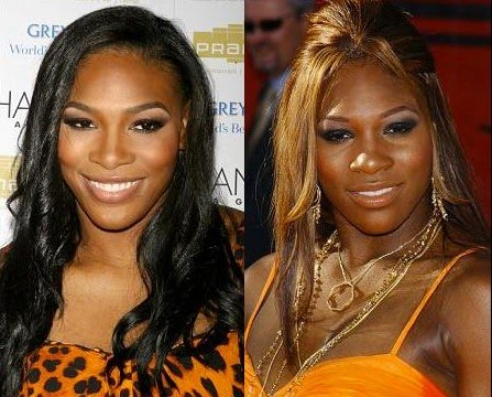 ... Serena Williams is rumored to have undergone plastic surgery to