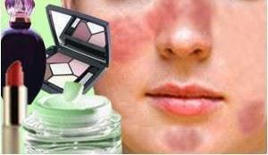 Cara Mengatasi Alergi Wajah Merah Ruam Bentol Akibat Kosmetik