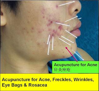 Will facial acupuncture help acne surname