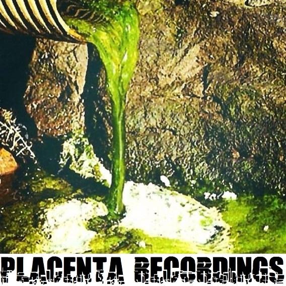 プラセンタレコーディング