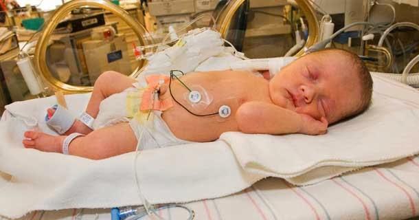 persalinan prematur | kelahiran prematur | penyebab kelahiran prematur | persalinan
