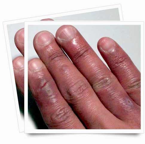 El hongo inveterado de las uñas en los pies de la foto