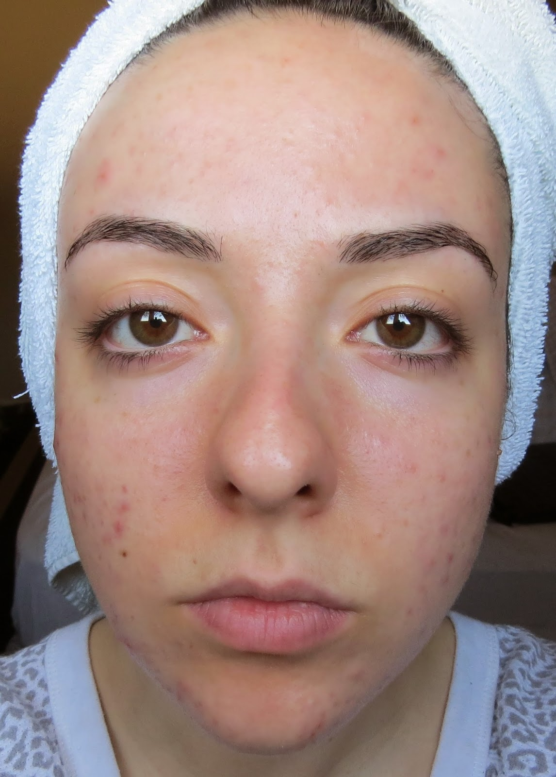 how to clear acne scars in a week