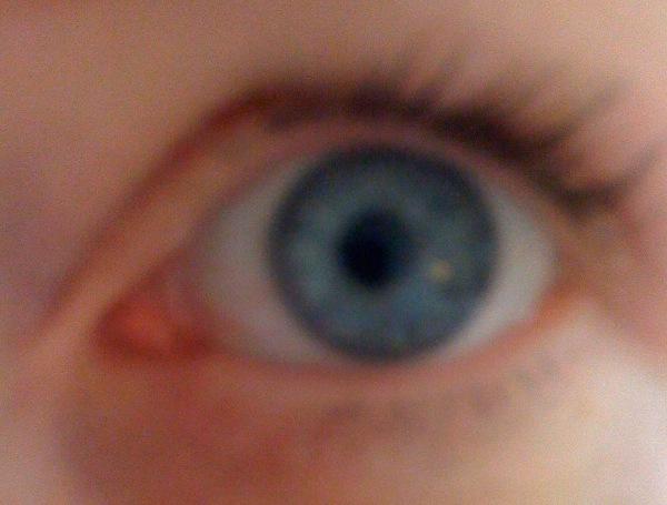 Chlamydia In The Eye Pin Symptoms Of Chlamy...