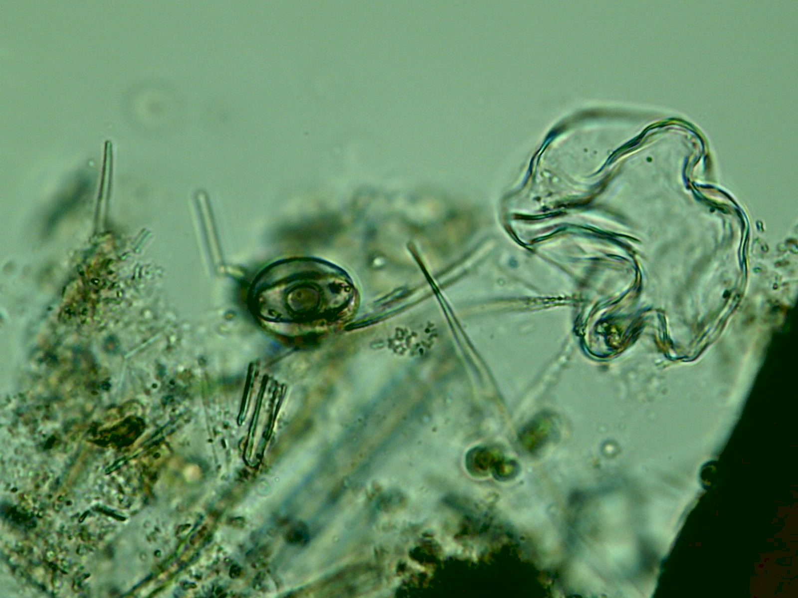 Friday  November 16  2012Microscopic Plants In Pond Water