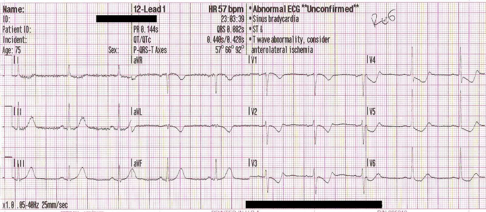 Re ekg rhythm strip