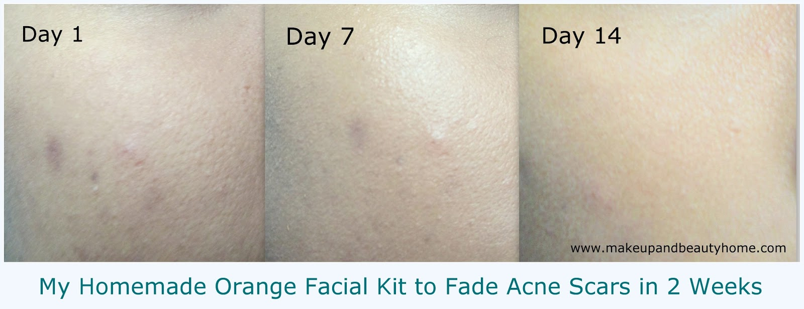 clearing acne after steroids