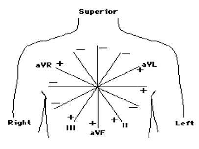 12 Lead Ecg Placement Diagram