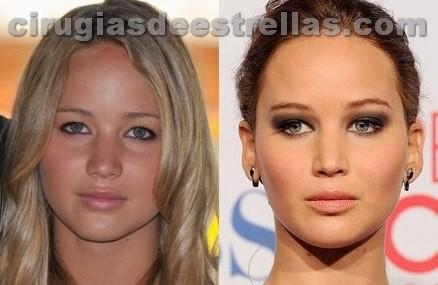 Jennifer Lawrence cirugía