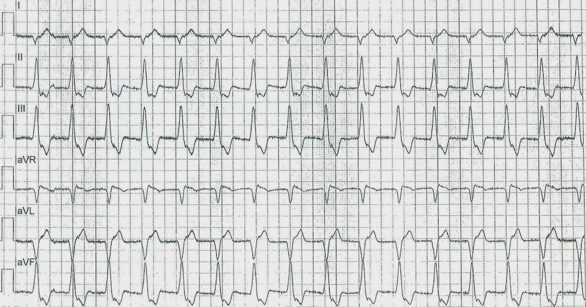 Dr Smith S Ecg Blog Is This Left Bundle Branch Block Is