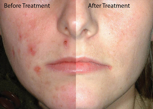 Acne Scars Home Remedy Natural Treatment