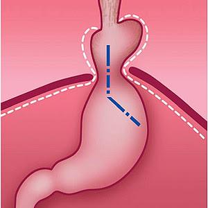 Перемещение части желудка в грудную полость и изменение угла Гиса при грыже пищеводного отверстия диафрагмы (схема)