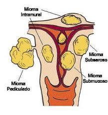Mioma uterino - Reproducción Asistida y Fertilidad