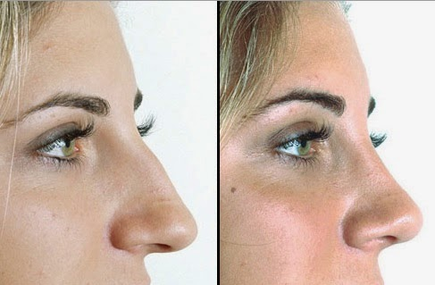 how to make my nose thinner without surgery