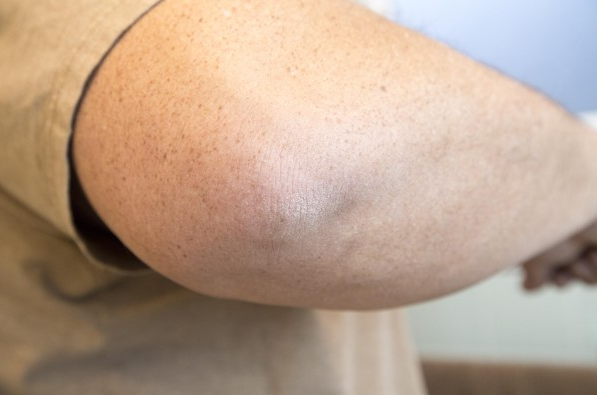 Here Is How To Get Rid Of Rough Skin On Elbows