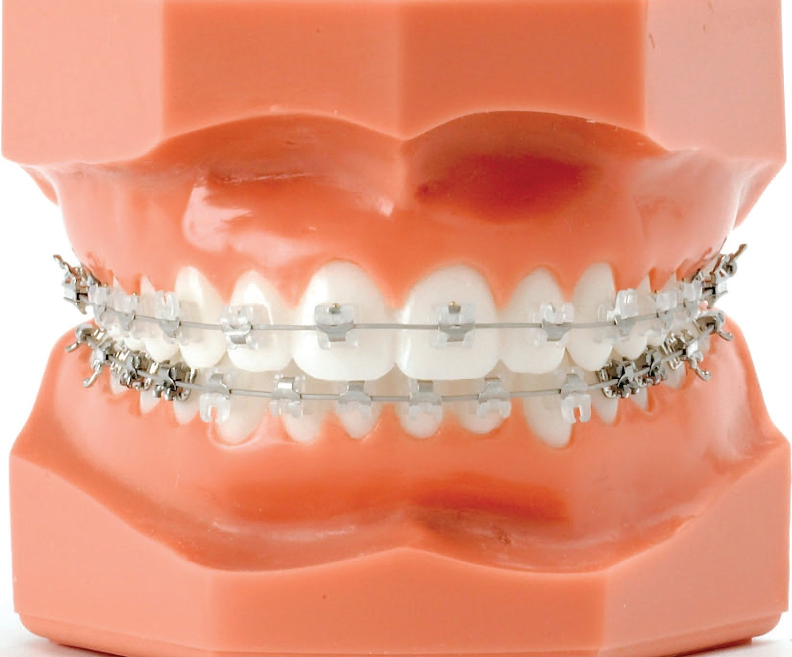 Ortodoncia | PROPEDEUTICO 6
