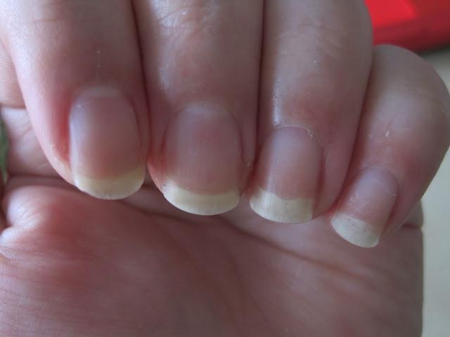 biogena odżywka efekty, efekty odżywiania paznokci