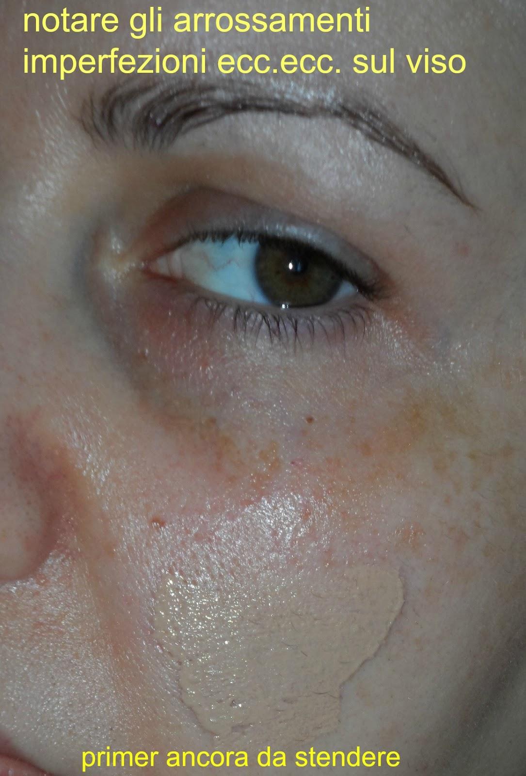 Comprare la crema di decolorazione per il corpo in una farmacia