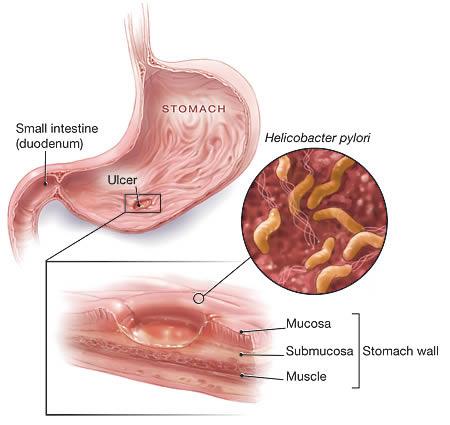 Helicobacter, un microb periculos