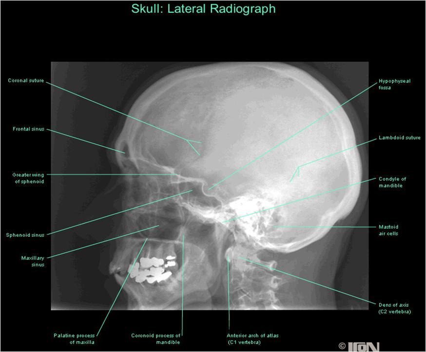 Lateral skull x ray anatomy