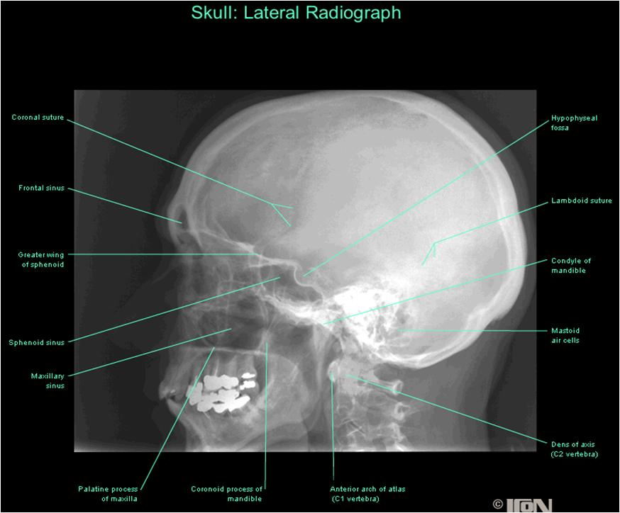 Lateral skull x ray anatomy 3558413 - follow4more.info
